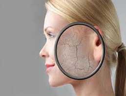 Атопічний дерматит: вчені визначили з якими захворюванням чекати асоціацію