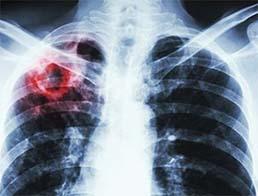Як відрізнити туберкульоз від COVID-19