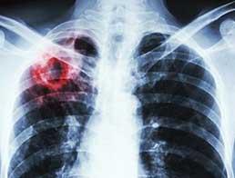 Супровід та лікування хворих на туберкульоз на первинній ланці