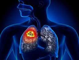 Стигматизація осіб із туберкульозом — результати дослідження