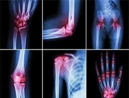 Лікування ревматоїдного артриту. Ефективність та безпека абатацепту