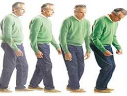 Хвороба Паркінсона: лікування у разі тремору спокою